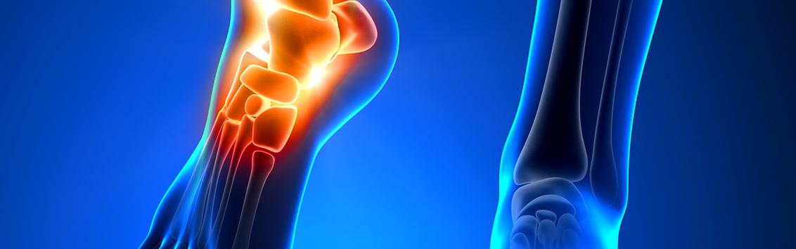 МРТ голеностопного сустава и стопы