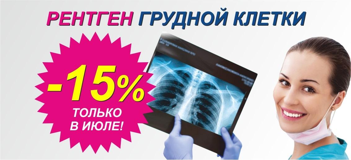 До конца июля действует скидка 15% на рентген грудной клетки (флюорографию)!