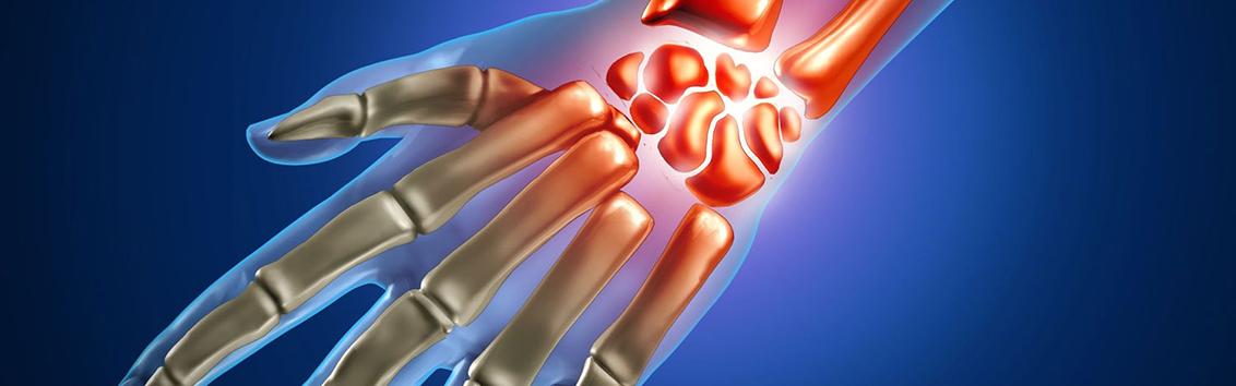 МРТ лучезапястного сустава и кисти