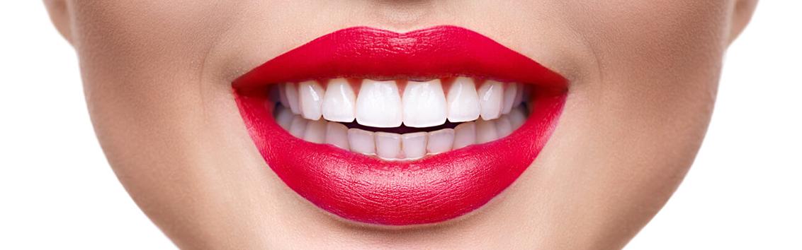 Отзывы об отбеливании зубов