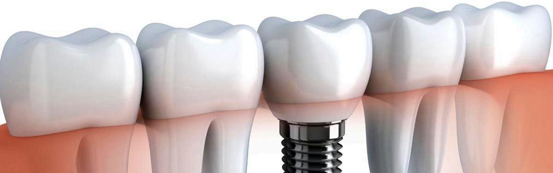 Стоимость имплантации зубов
