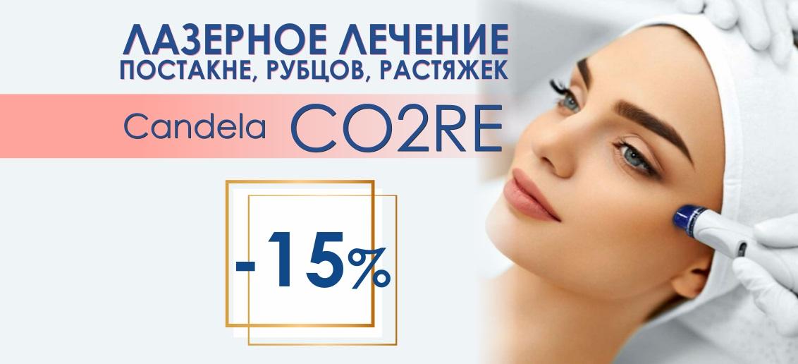 Лечение постакне, рубцов на лазерном аппарате Candela CO2RE со скидкой 15% до конца апреля!