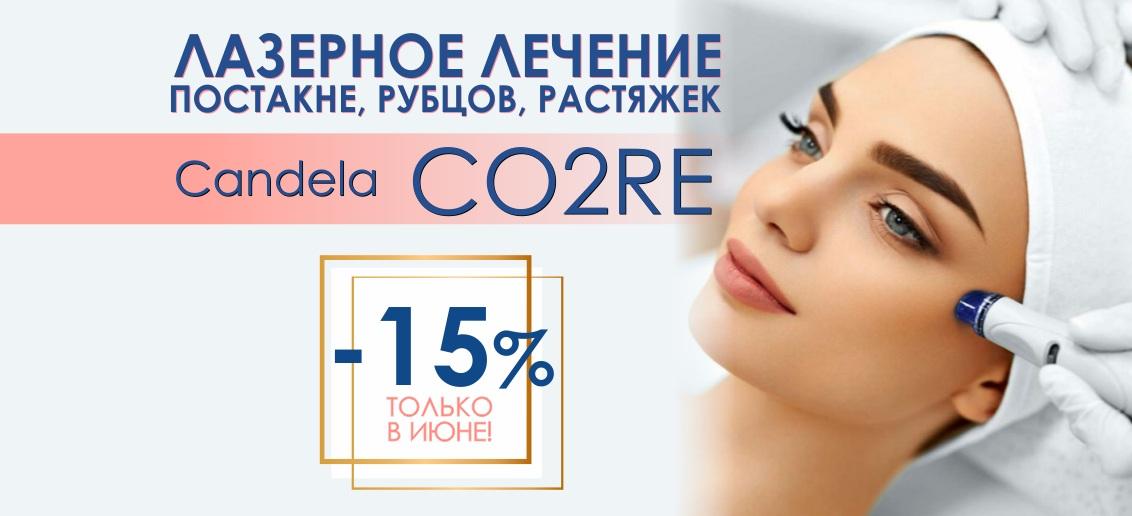 Лечение постакне, рубцов на лазерном аппарате Candela CO2RE со скидкой 15% до конца июня!
