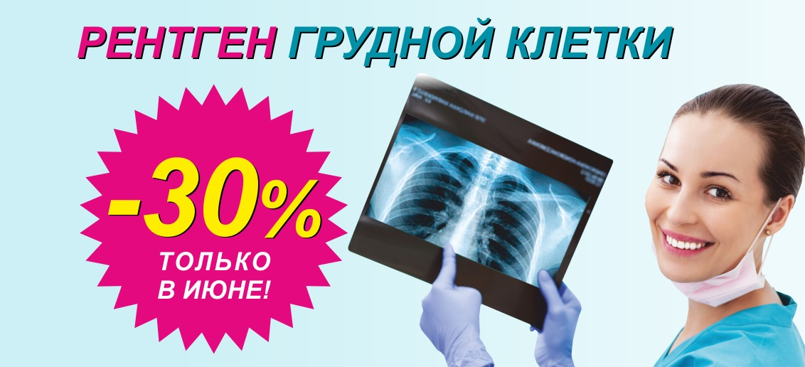 Скидка 30% на рентген грудной клетки (флюорографию) до конца июня!