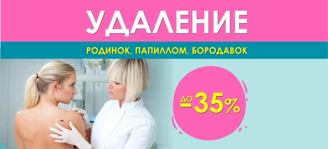 Удаление кожных новообразований (родинок, бородавок, папиллом) со скидками до 35% до конца июля!