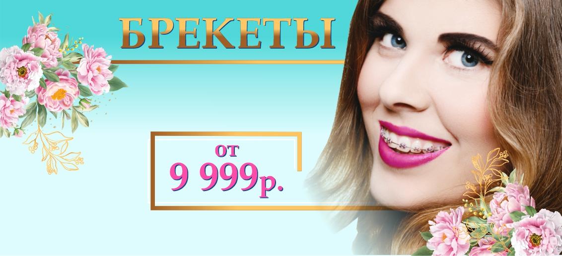 Брекет-система с установкой - от 9 999 рублей до конца апреля! Подари себе красивые и ровные зубы!