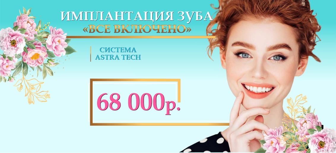 Имплантация Astra Tech «Все включено» - всего 68 000 рублей до конца апреля!